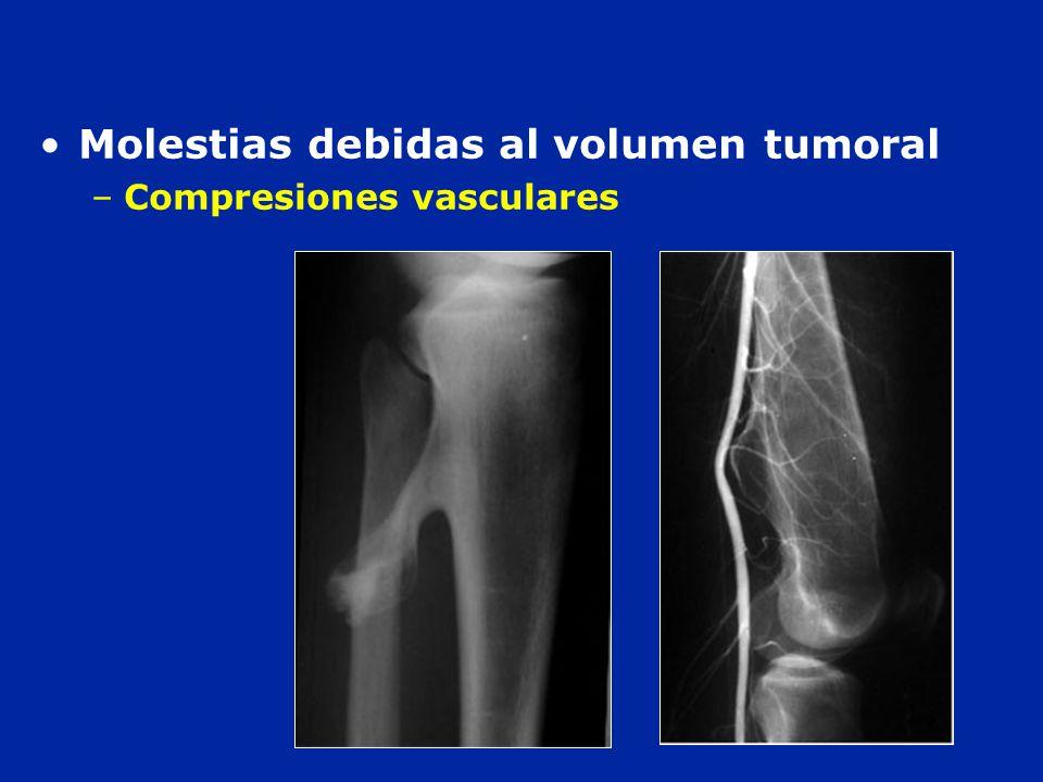 Molestias debidas al volumen tumoral