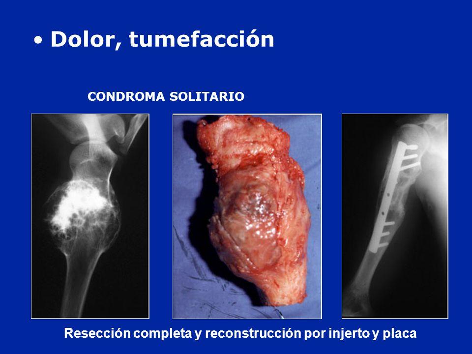 Dolor, tumefacción CONDROMA SOLITARIO Resección completa y reconstrucción por injerto y placa