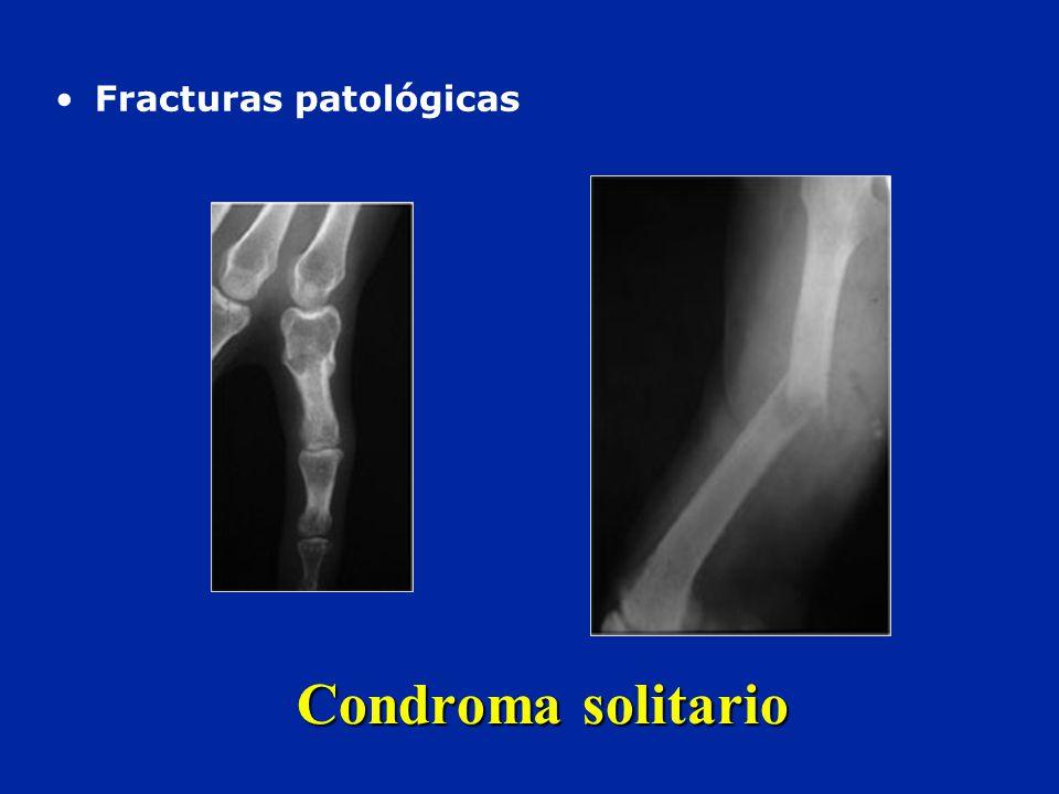 Fracturas patológicas