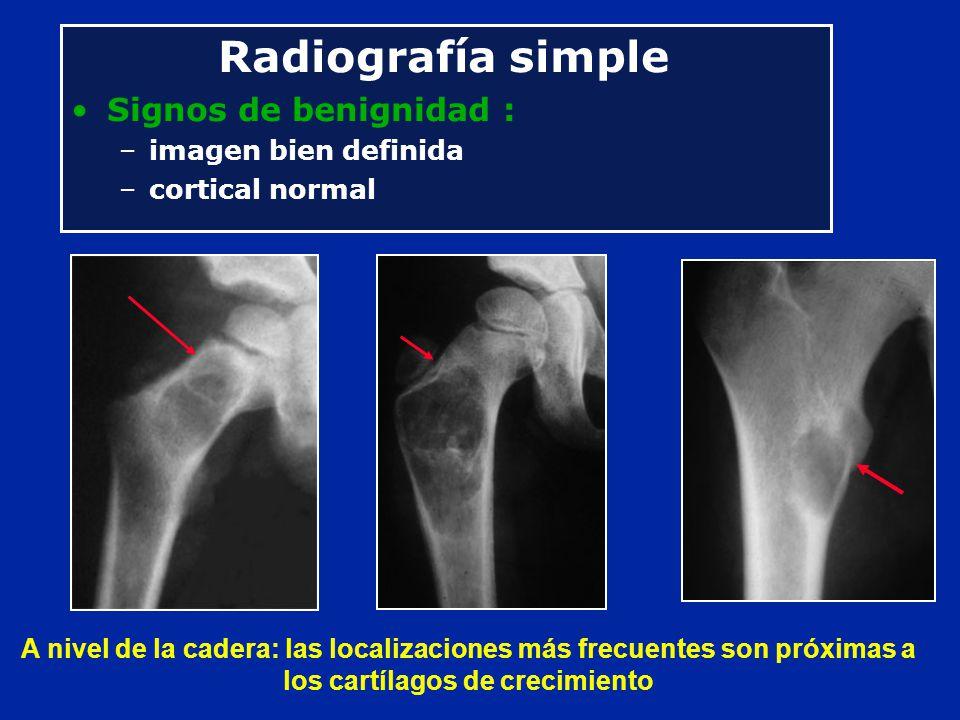 Radiografía simple Signos de benignidad : imagen bien definida