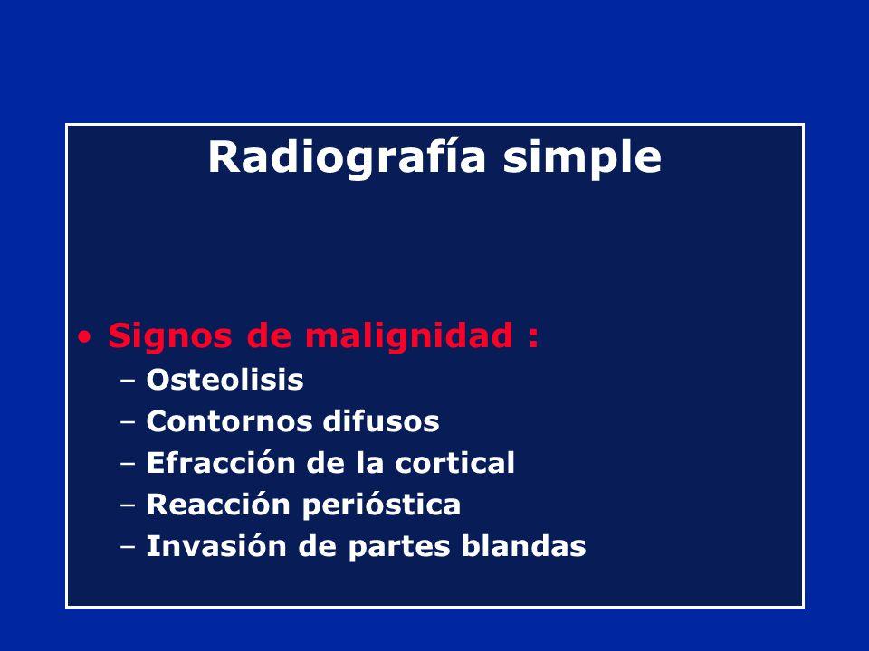 Radiografía simple Signos de malignidad : Osteolisis Contornos difusos