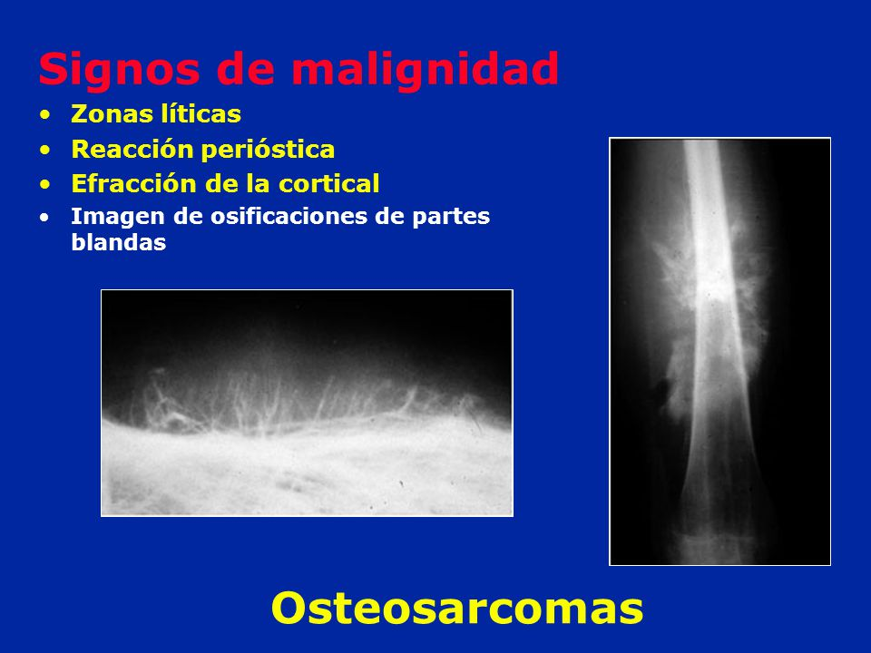 Signos de malignidad Osteosarcomas Zonas líticas Reacción perióstica