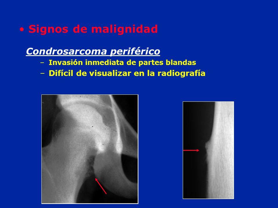 Signos de malignidad Condrosarcoma periférico
