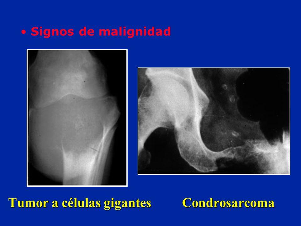Tumor a células gigantes Condrosarcoma
