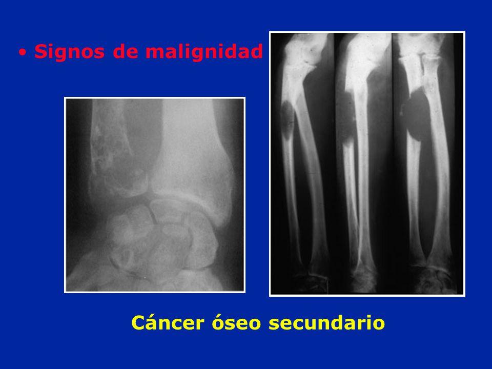 Cáncer óseo secundario
