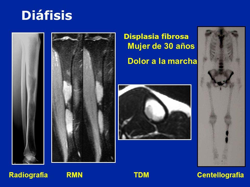 Diáfisis Mujer de 30 años : Dolor a la marcha Displasia fibrosa