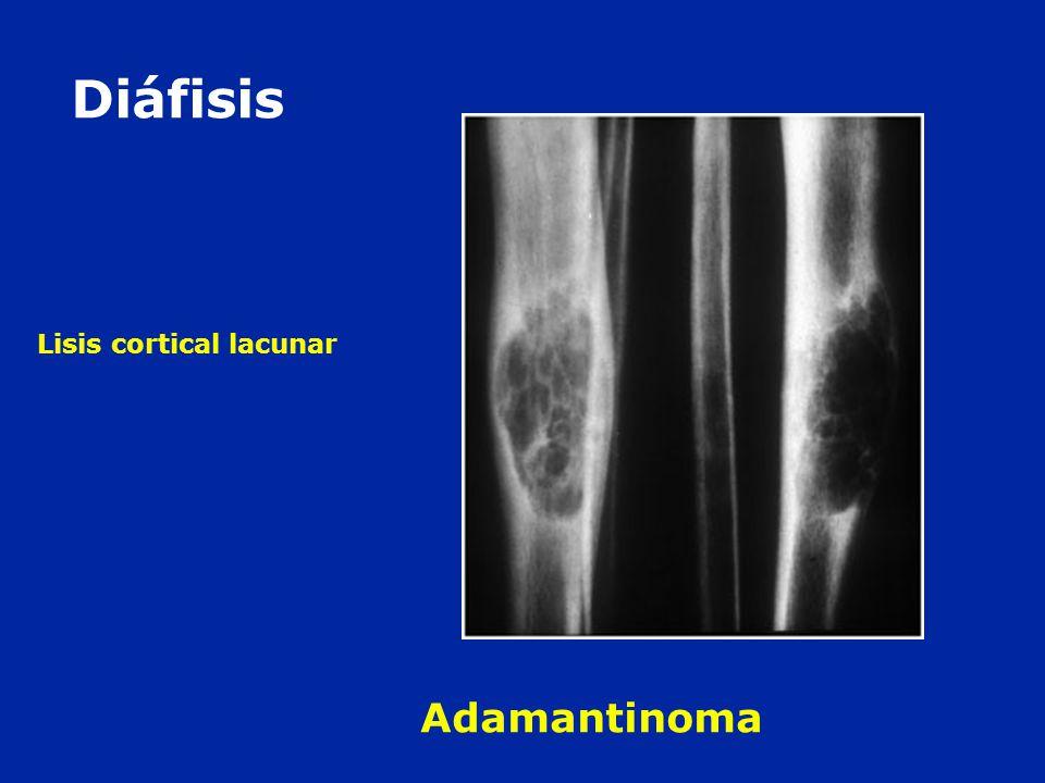 Diáfisis Lisis cortical lacunar Adamantinoma