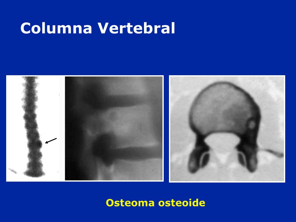 Columna Vertebral Osteoma osteoide