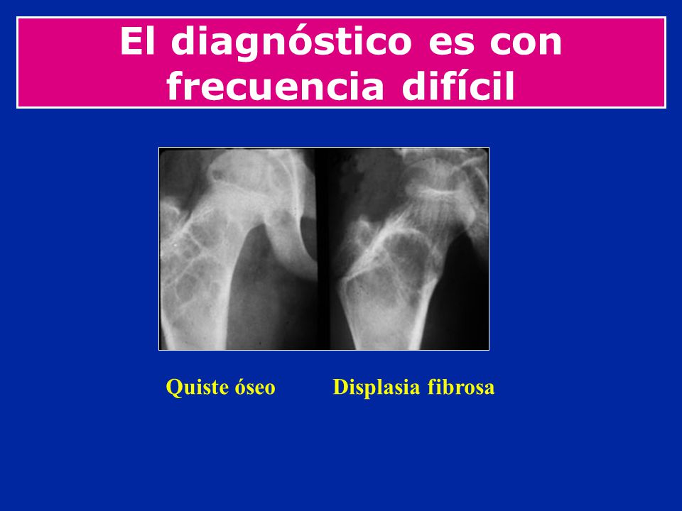 El diagnóstico es con frecuencia difícil