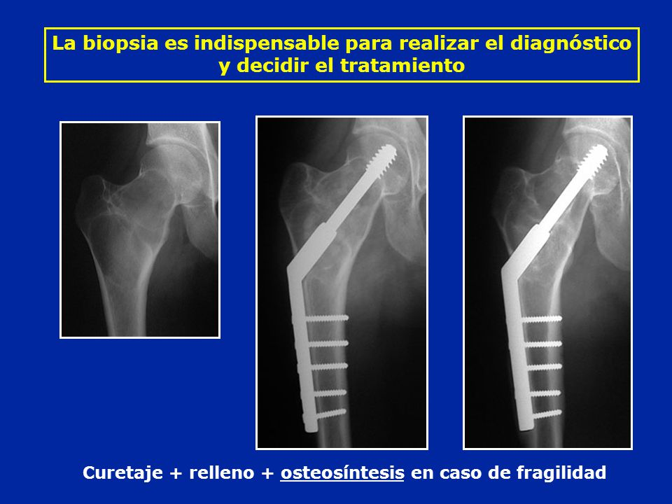 Curetaje + relleno + osteosíntesis en caso de fragilidad