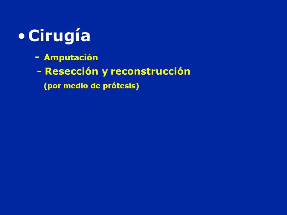 Cirugía - Amputación - Resección y reconstrucción