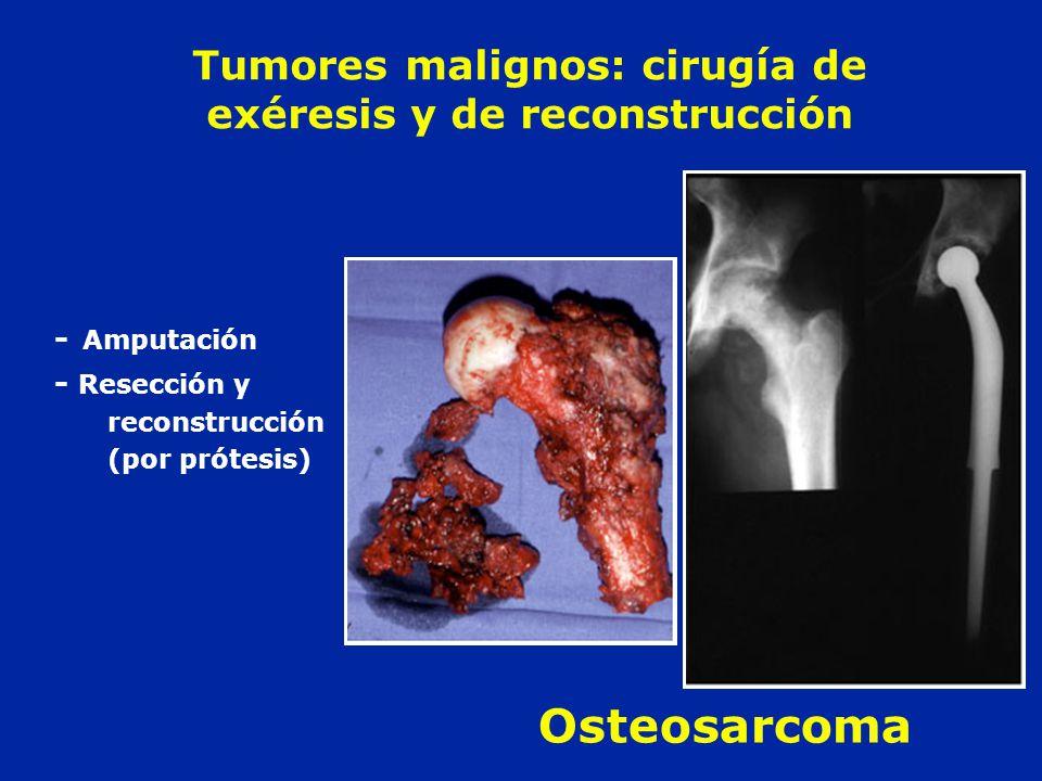 Tumores malignos: cirugía de exéresis y de reconstrucción