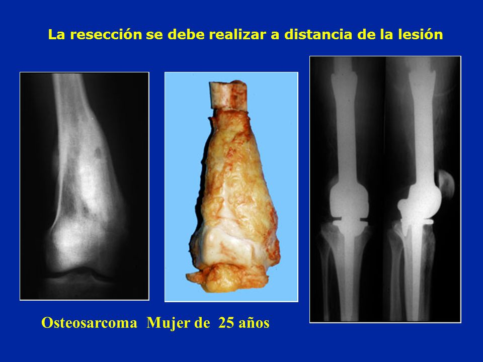 La resección se debe realizar a distancia de la lesión