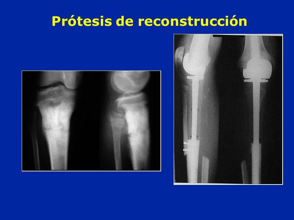 Prótesis de reconstrucción