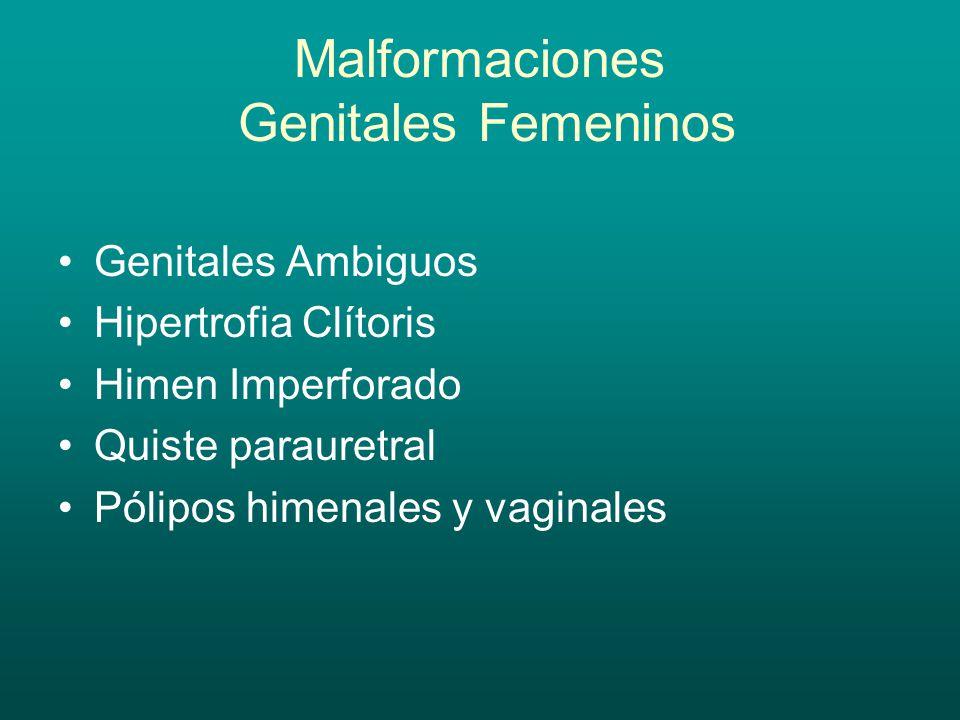 Malformaciones Genitales Femeninos