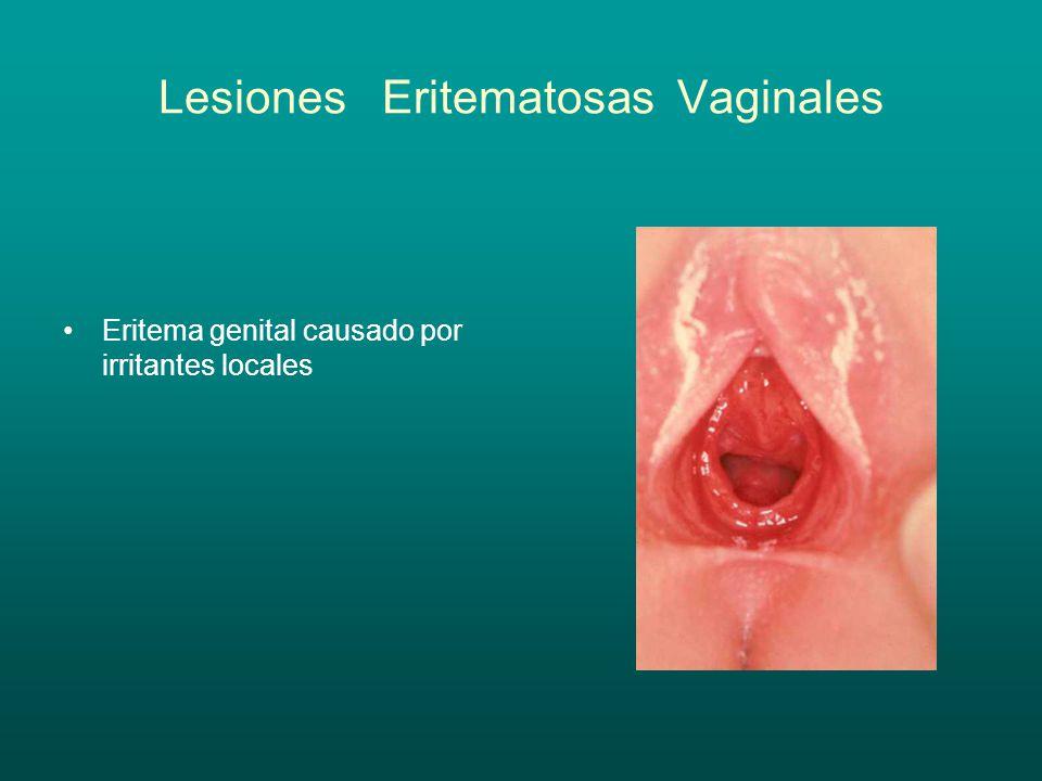 Lesiones Eritematosas Vaginales