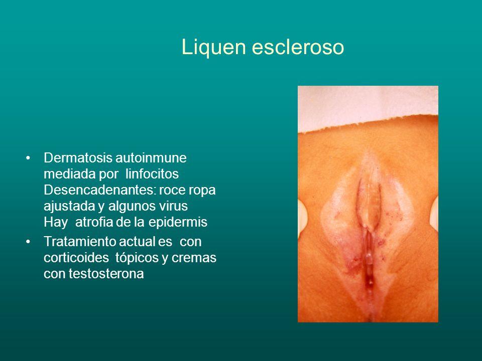 Liquen escleroso Dermatosis autoinmune mediada por linfocitos Desencadenantes: roce ropa ajustada y algunos virus Hay atrofia de la epidermis.