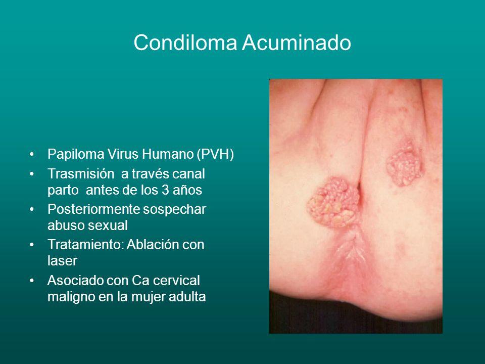 Condiloma Acuminado Papiloma Virus Humano (PVH)