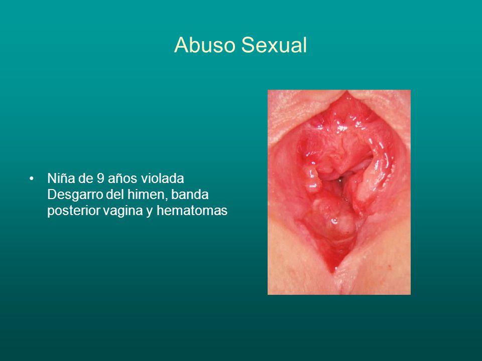 Abuso Sexual Niña de 9 años violada Desgarro del himen, banda posterior vagina y hematomas