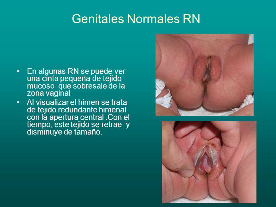 Genitales Normales RN En algunas RN se puede ver una cinta pequeña de tejido mucoso que sobresale de la zona vaginal.