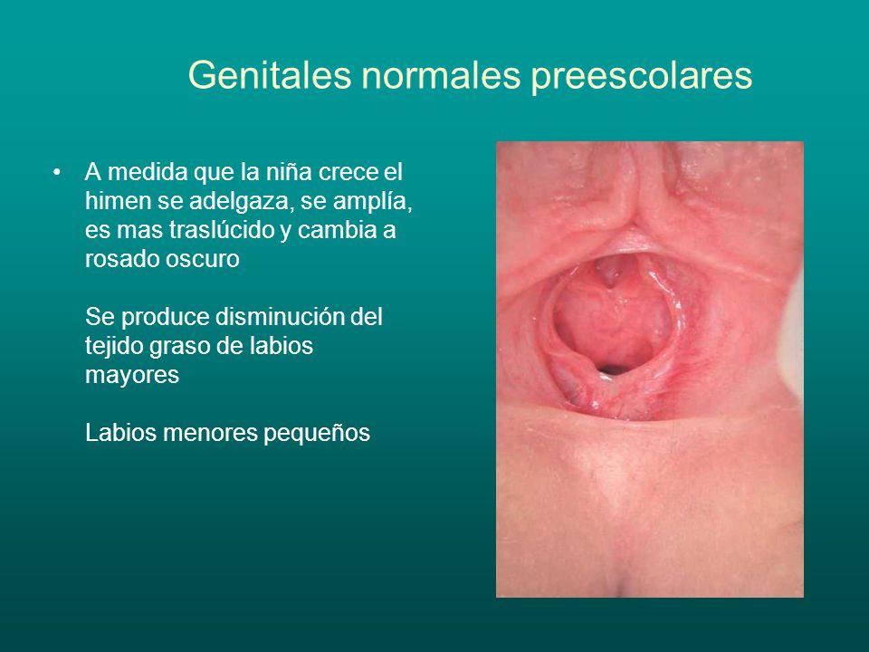 Genitales normales preescolares