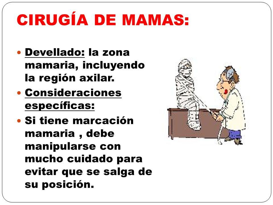CIRUGÍA DE MAMAS: Devellado: la zona mamaria, incluyendo la región axilar. Consideraciones específicas: