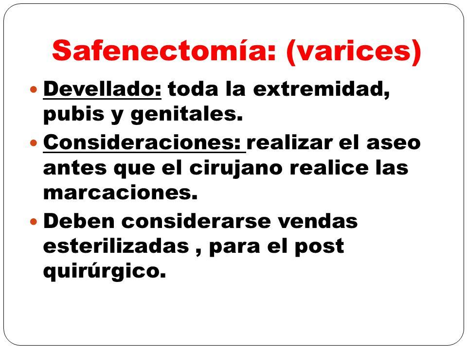 Safenectomía: (varices)
