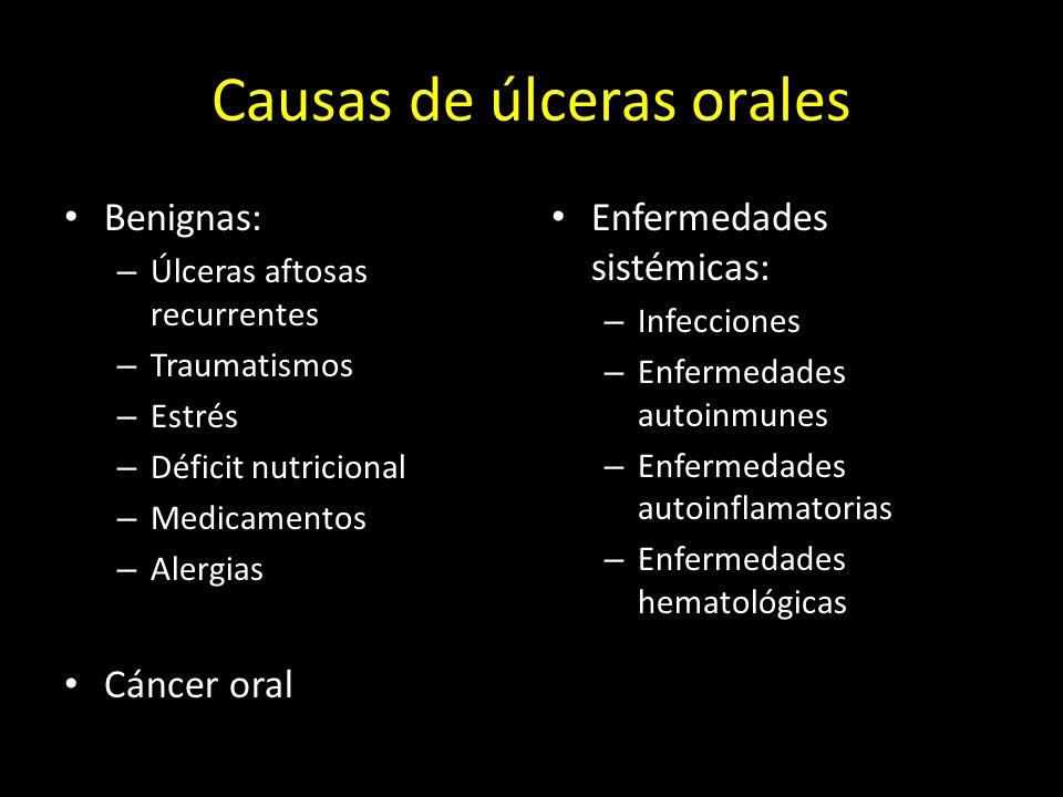 Causas de úlceras orales