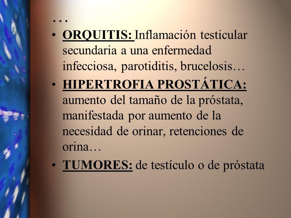 …ORQUITIS: Inflamación testicular secundaria a una enfermedad infecciosa, parotiditis, brucelosis…