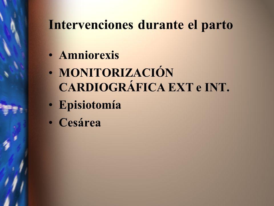 Intervenciones durante el parto
