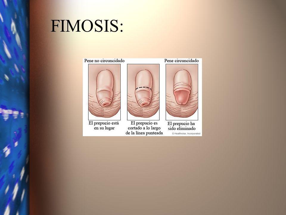 FIMOSIS: