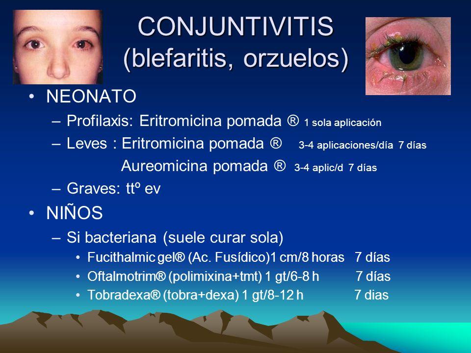 CONJUNTIVITIS (blefaritis, orzuelos)