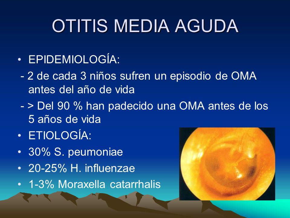 OTITIS MEDIA AGUDA EPIDEMIOLOGÍA: