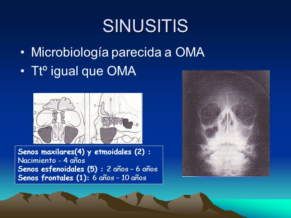 SINUSITIS Microbiología parecida a OMA Ttº igual que OMA