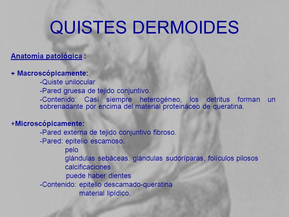 Bonito Anatomía De Un Quiste Sebáceo Foto - Anatomía de Las ...