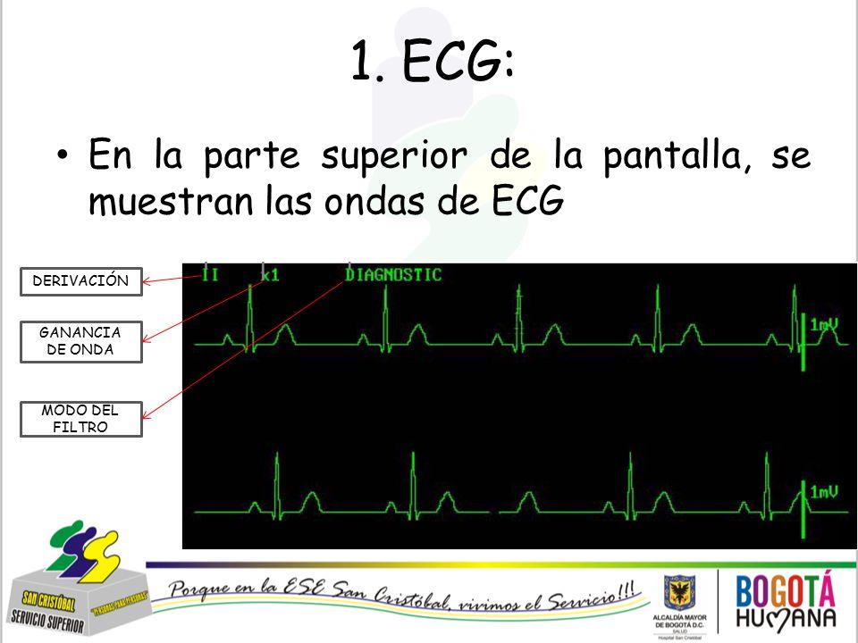 1. ECG: En la parte superior de la pantalla, se muestran las ondas de ECG. DERIVACIÓN. GANANCIA DE ONDA.