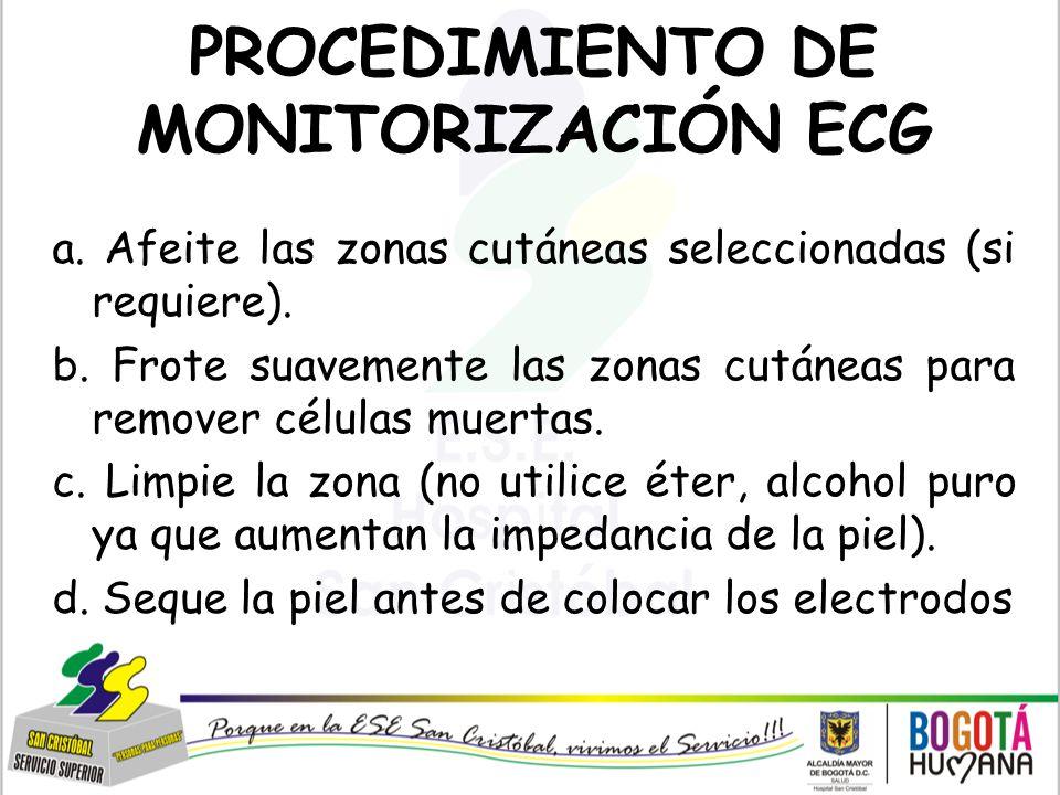 PROCEDIMIENTO DE MONITORIZACIÓN ECG