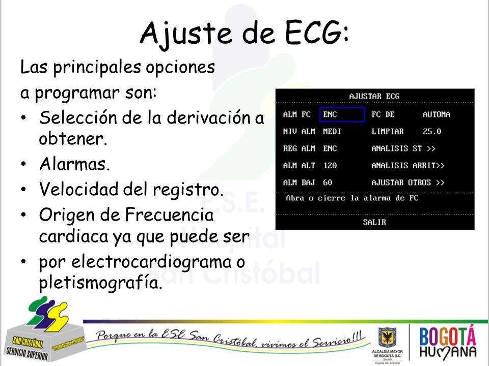 Ajuste de ECG: Las principales opciones a programar son:
