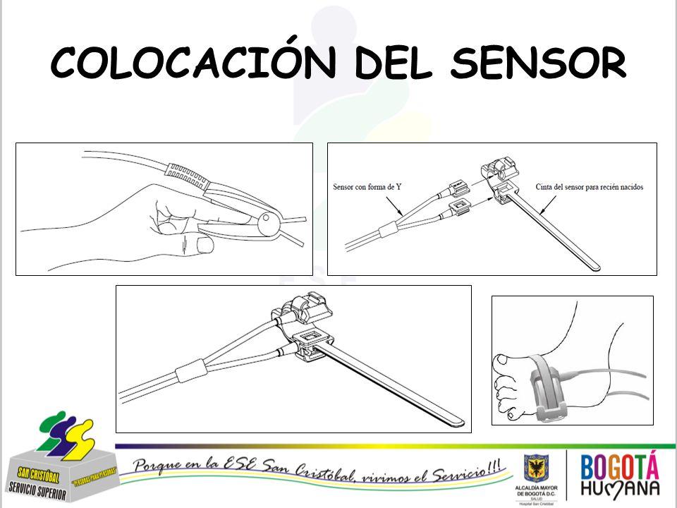 COLOCACIÓN DEL SENSOR