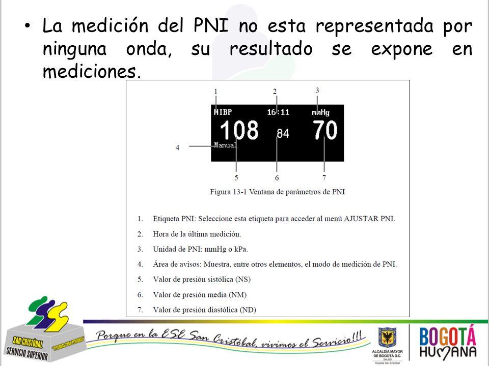 La medición del PNI no esta representada por ninguna onda, su resultado se expone en mediciones.