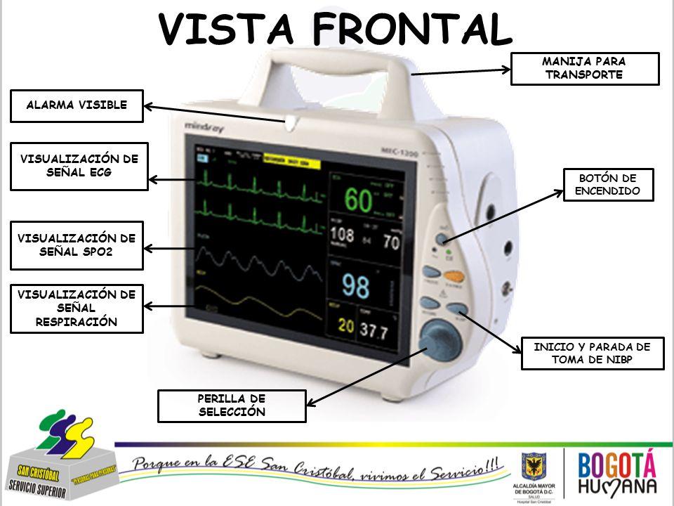 VISTA FRONTAL MANIJA PARA TRANSPORTE ALARMA VISIBLE