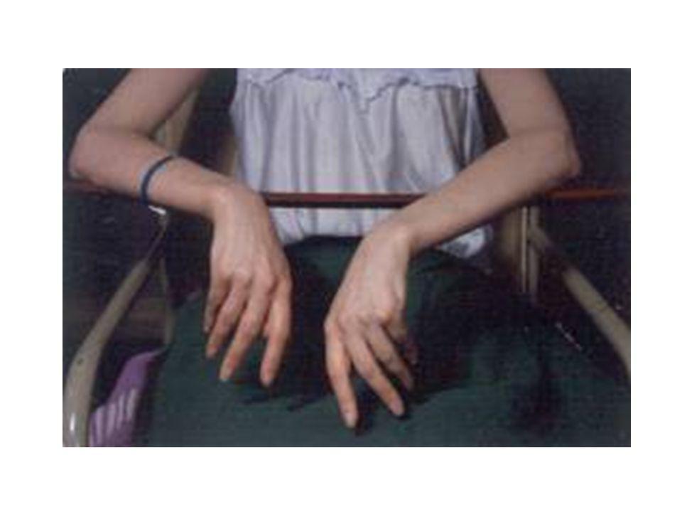 paciente con parálisis residual en ambas manos tras un ataque de Porfiria Aguda.