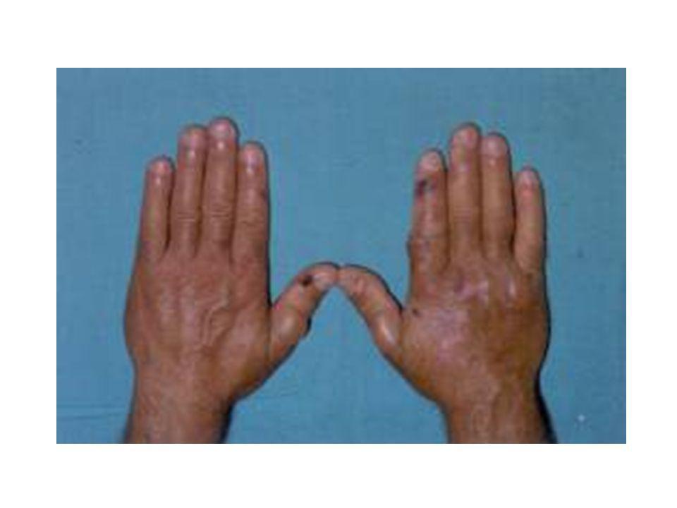 la sospecha clínica nace ante la presencia de lesiones fotosensibles en el dorso de las manos