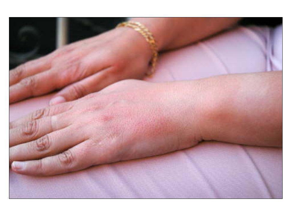Una porfiria cutánea puede manifestarse como una quemadura solar en el dorso de las manos de una paciente