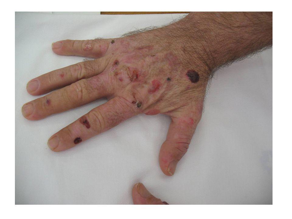 El acúmulo de porfirinas en los vasos de la piel puede originar lesiones tales como ampollas, erociones, costras, cicatrices