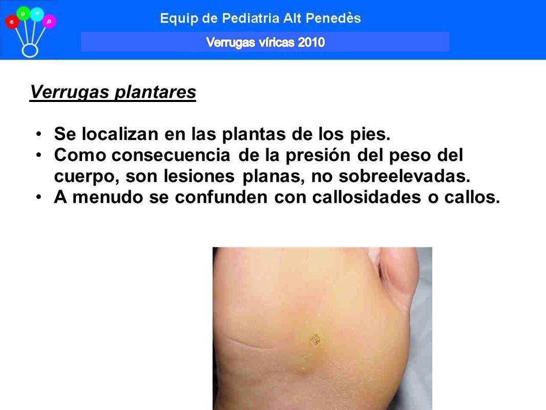 Vesculas en las plantas de los pies: varicela? - Dialnet