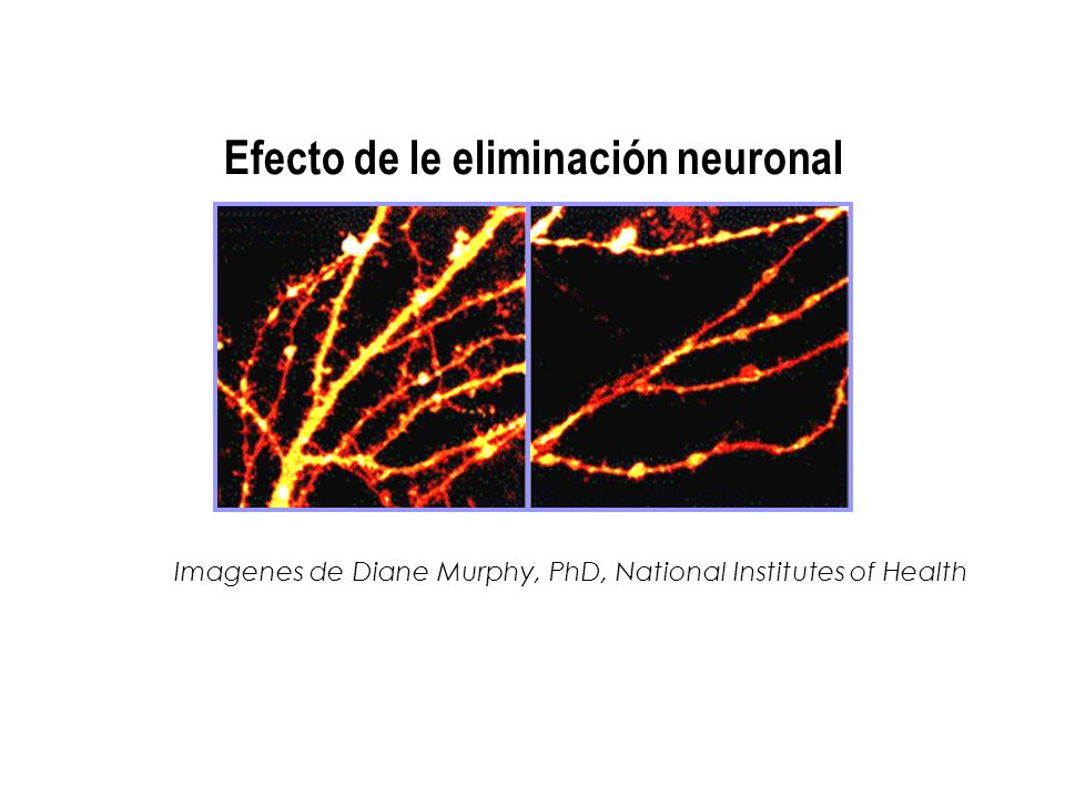 Efecto de le eliminación neuronal