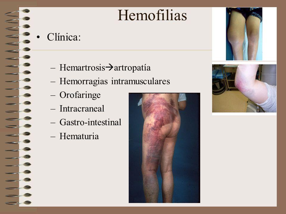 Hemofilias Clínica: Hemartrosisartropatía Hemorragias intramusculares