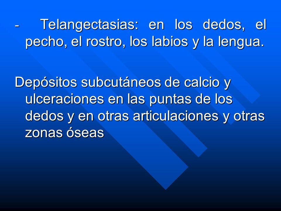 - Telangectasias: en los dedos, el pecho, el rostro, los labios y la lengua.