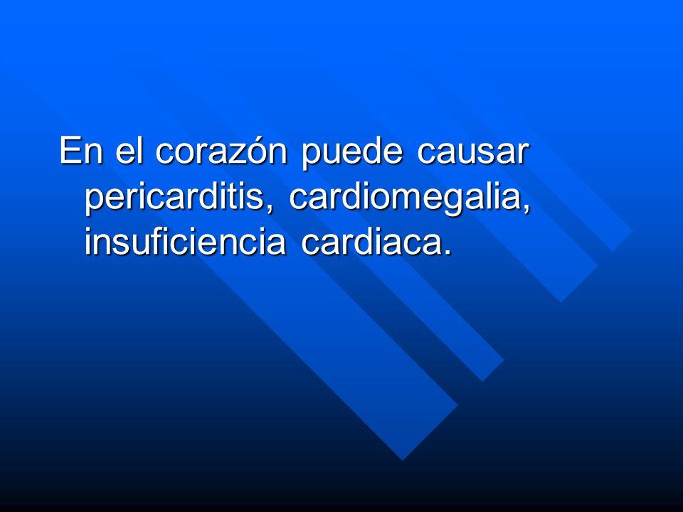 En el corazón puede causar pericarditis, cardiomegalia, insuficiencia cardiaca.